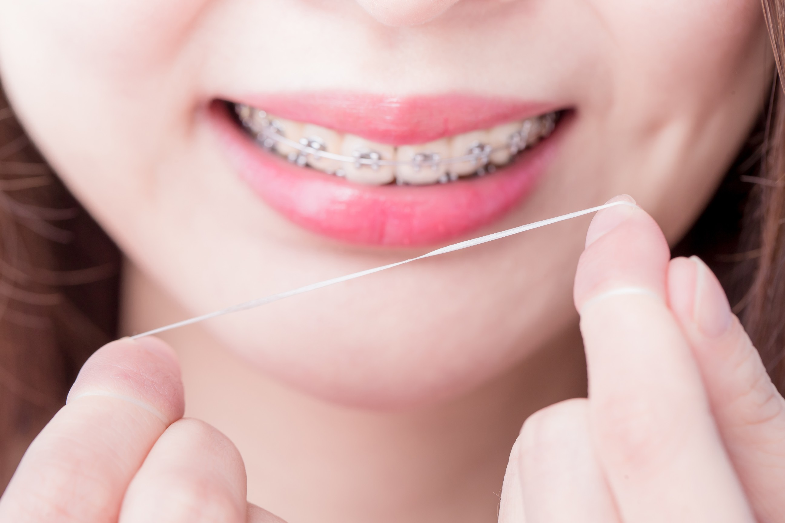 how to have clean teeth with braces